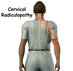 cervical_radiculopathy_